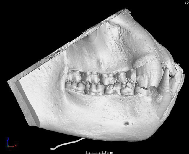 Gorilla gorilla male adult dentition CCEC unknown number